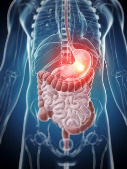 combatir la acidez de estómago