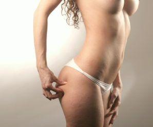Remedios naturales para combatir estrías