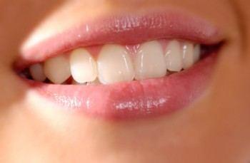 Eliminar arrugas en la boca