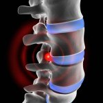 Discopatía cervical y lumbar: causas, tratamientos naturales, prevención