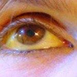 ¿ Ojos amarillos ? Causas y Tratamiento Natural