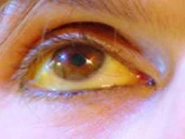 Ojos amarillos por acumulación de Bilirrubina