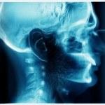 Hidrocefalia (agua en el cerebro): causas y tratamiento natural