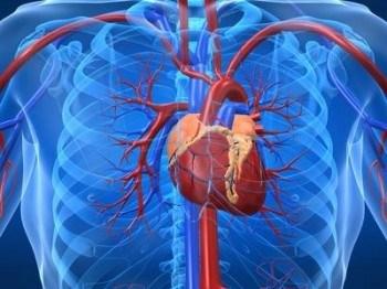 Problemas cardiacos: Taquicardía