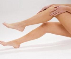 Útiles consejos para tus piernas, várices, arañitas y más