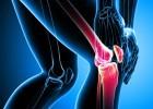 Artritis Reumatoide: consejos de salud a tener en cuenta