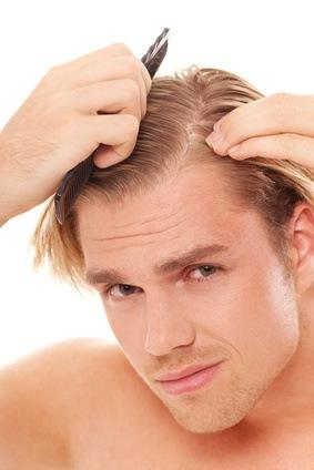 Qué puedo hacer contra la calvicie o alopecia
