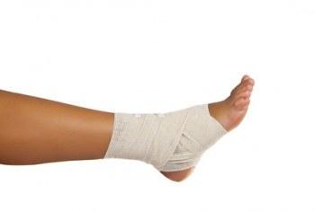 Opciones naturales para curar ligamentos, esguinces y torceduras